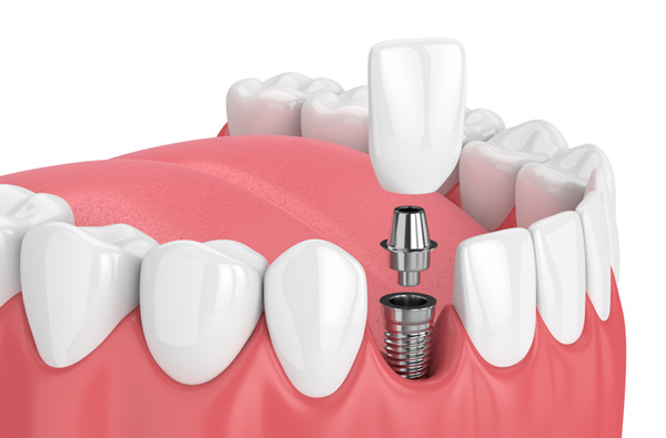Rendering of jaw with dental implant