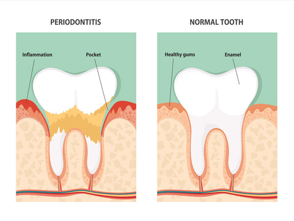 Diagram of periodontitis and healthy tooth vs tooth with gum disease.